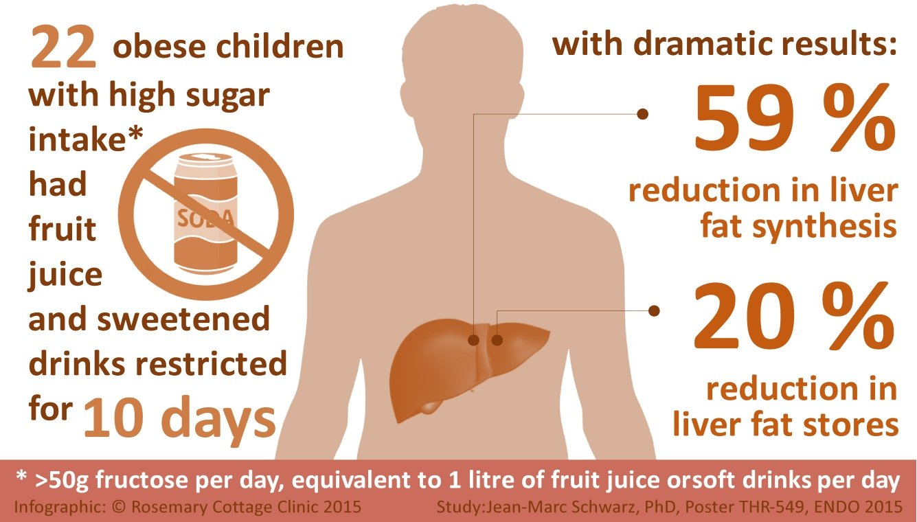 Infographic: study of obese children showing improvements in liver function in ten days when sugary drinks were removed from their diets