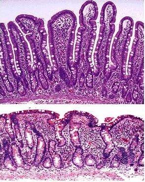 celiac_biopsy