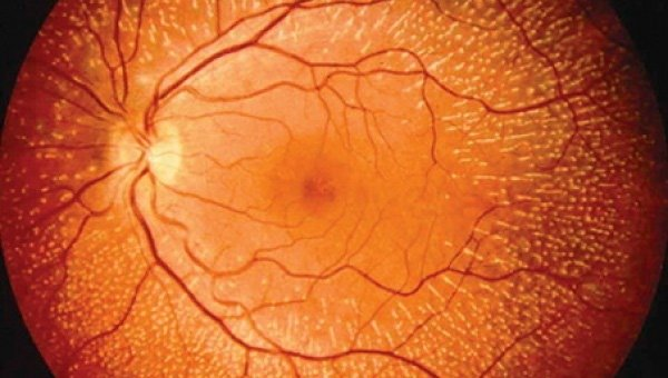 In the retina nerve cells are directly and almost continuosly exposed to light